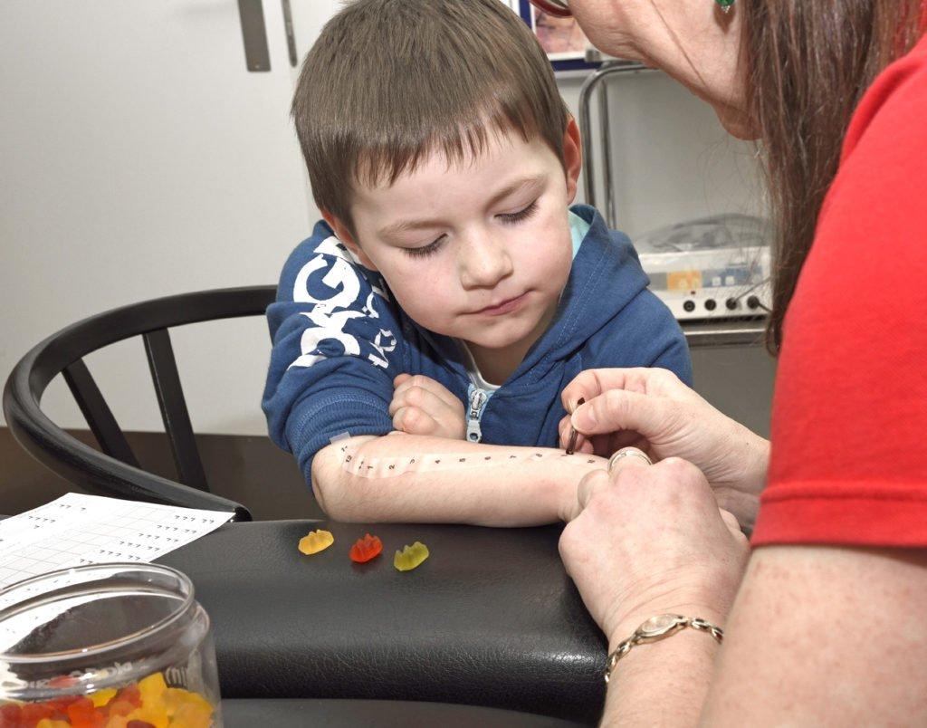 Allergi testen - priktest